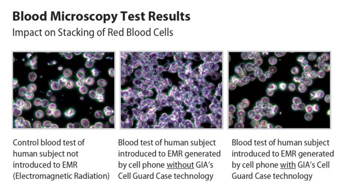 Blood Microscopy Test Results